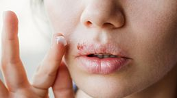 5 Cold Sore Remedies to Try